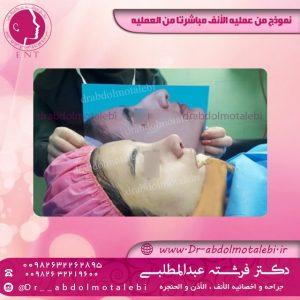 جراحة الأنف مع تقويم الأسنان