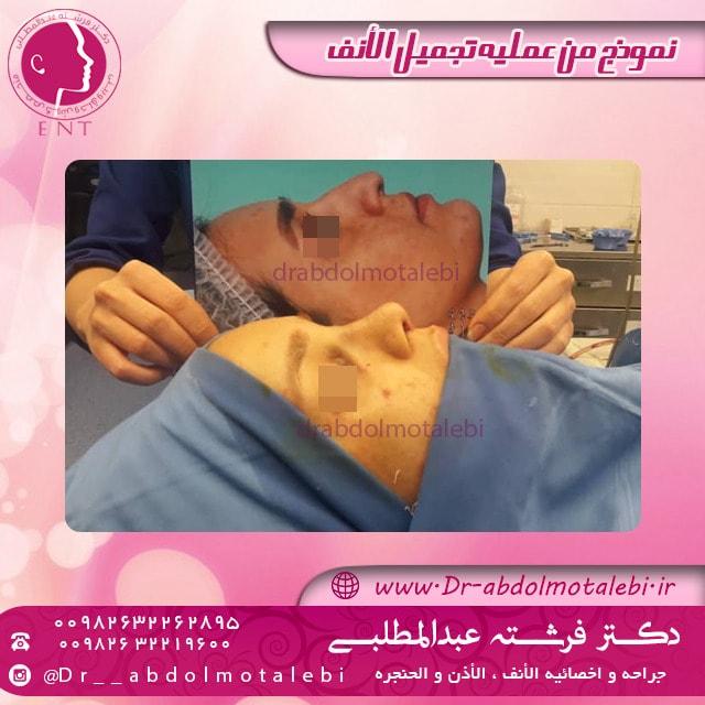 غسل الأنف بعد العملية الجراحية